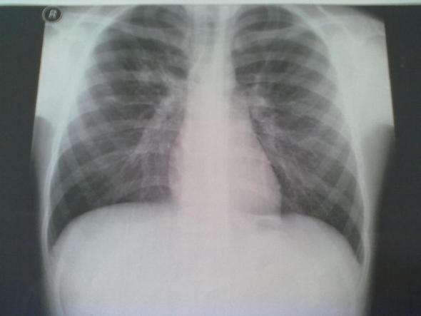 Ist Lungenkrebs Ansteckend