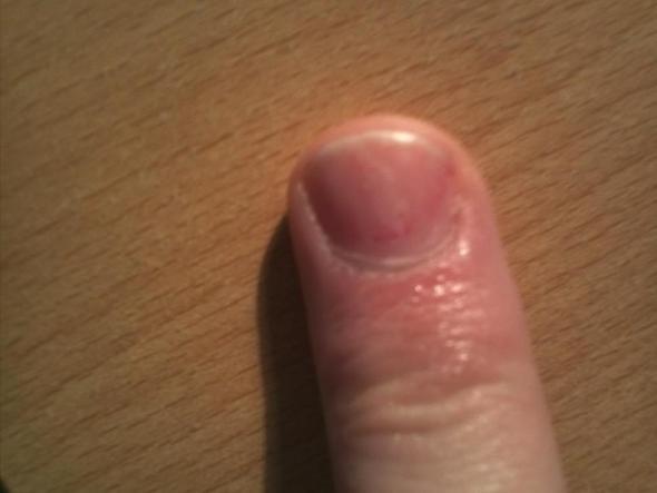 Listerin bei gribke die Nägel
