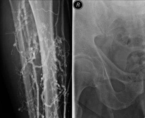 schwanger und geschlechtsverkehr geschlechtsverkehr röntgen