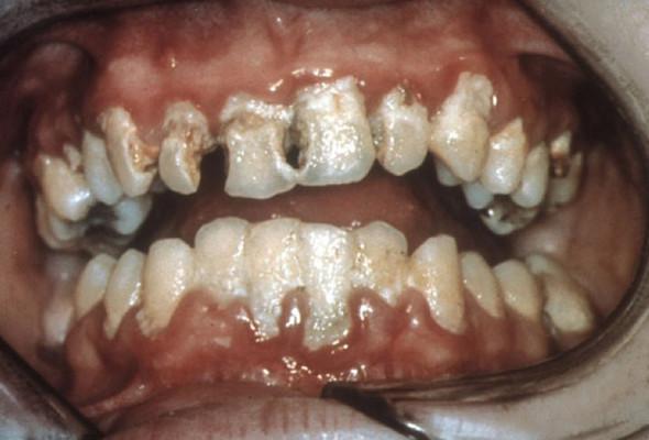 Zähne einer Bulimikerin - (abgewöhnen, jsjs)