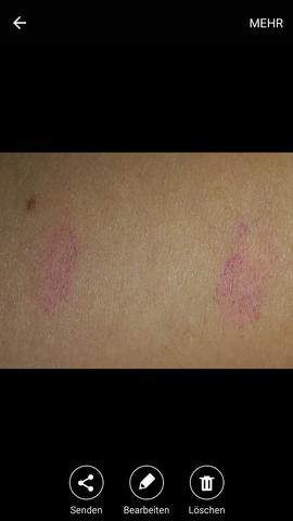 - (Haut, Ausschlag, Dermatologie)