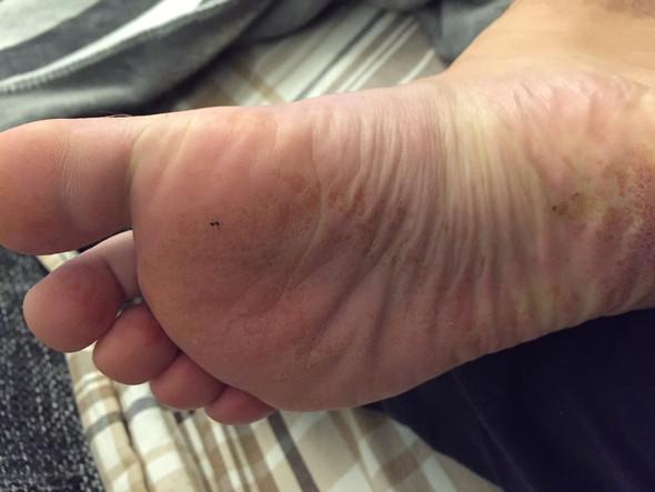 - (Füße, Hornhaut, Fußpilz)