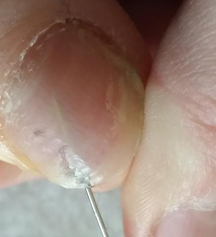 Blase unter dem Nagel - (Füße, Blasen, Fußnägel)