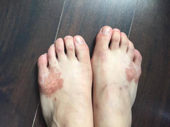 aktuelles Bild der Flecken - (Dermatologie, Flecken am Fuß )