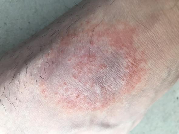 Hier - (Haut, Füße, Dermatologie)