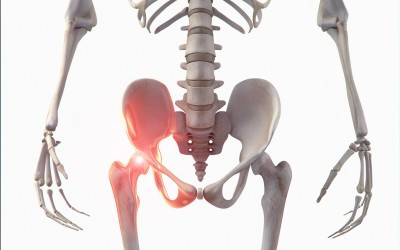 Bild Seitenverkehrt - (Orthopädie, Hüfte, hüftgelenk)