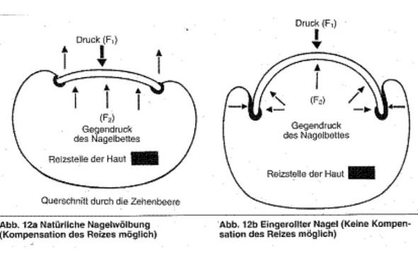 Normaler Nägel vs. eingewachsener Rollnagel - (Entzündung, Zeh)