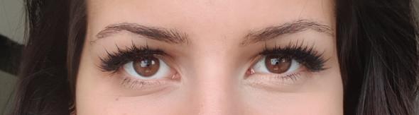 - (Augen, Gerstenkorn)
