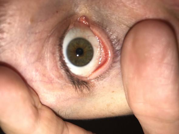 Das Auge - (Augen, Bindehautentzündung, gelblich)