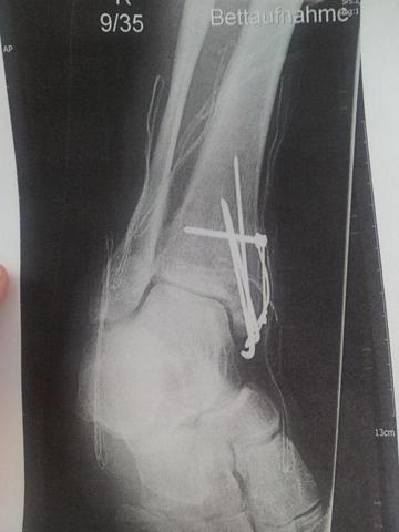Sprunggelenk rechts mit vielen Drähten und Schraube mit Schlinge - (Operation, Sprunggelenk, Fraktur)