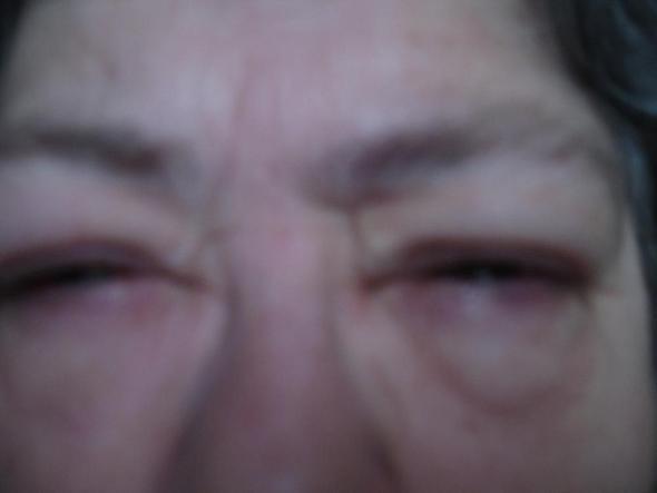 Erkältung Augen Verklebt