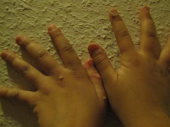 Die Poliklinik gribok der Nägel auf den Beinen
