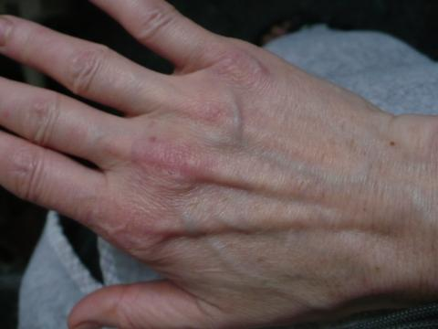 Sinaflan bei der Schuppenflechte hilft oder nicht