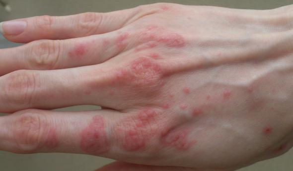 Ausschlag an der Hand - (Haut, Beine, Ausschlag)