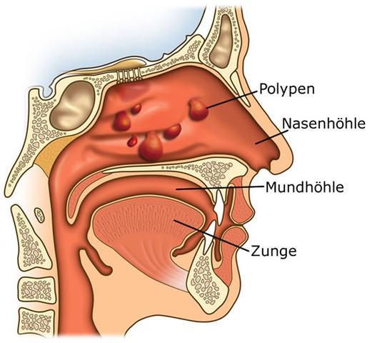 Nasenpolypen - (Nase, Cortison, atmen)