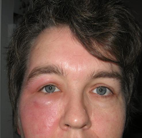 Gesichtrose - (Haut, Gesicht, Ausschlag)