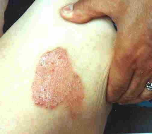 Psoriasis (Schuppenflechte) Oberschenkel - (Schuppenflechte, Hautkrankheit)