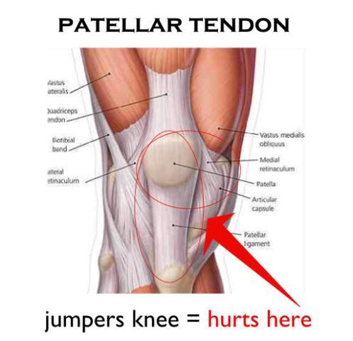 Knie Bänder - (MRT, Befund)
