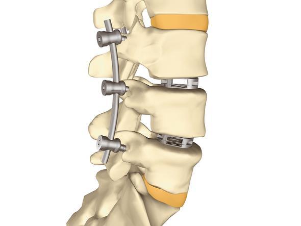 Wirbelsäulen -OP - (Rückenschmerzen, Knochen)