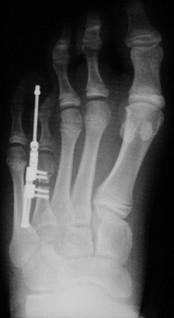 Brachymetatarsie - (Füße, Zehenverlängerung, Fixateur intern)