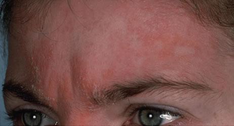 Neurodermitis  - (Neurodermitis, Kopfhaut, Hautprobleme)