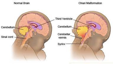 Rechts Arnold-Chiari (gelb ist Kleinhirn) - (Geburt, Syndrom, Spinalanästhesie)