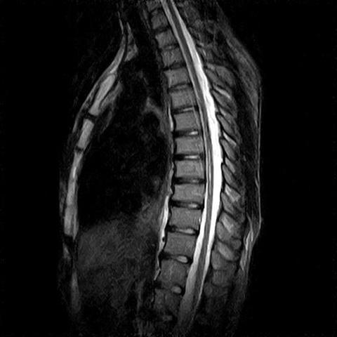 Mein Bild - (MRT, Schulterschmerzen, Rückenmark)