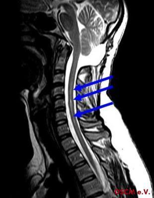 Syringomyelie - (MRT, Schulterschmerzen, Rückenmark)