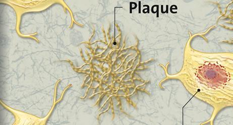 Plaque - (Vorbeugung, Heilung, Demenz)