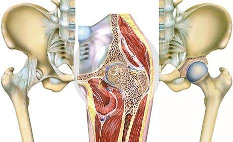 Hüfte  - (Operation, Gelenke, Knochen)