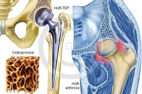 Endo  - (Operation, Gelenke, Knochen)