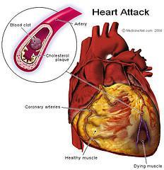Herz - (Symptome, Diagnose, herzinfarkt)