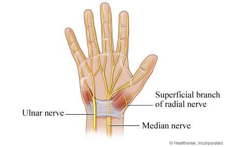 Handnerven - (Hand, MRT, Befund)