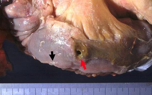 Darmperforation  - (Schmerzen, Darm, Krankenhaus)