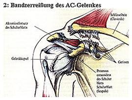 AC- Gelenk 2 (Bänderriss)  - (Schmerzen, Oberarm, MRT Befund)