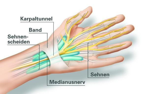 Karpaltunnelsyndrom - (Schmerzen, Arzt, Gesundheit)