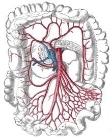 Arterie. mesenterica superior - (OP, Aortenstenose)