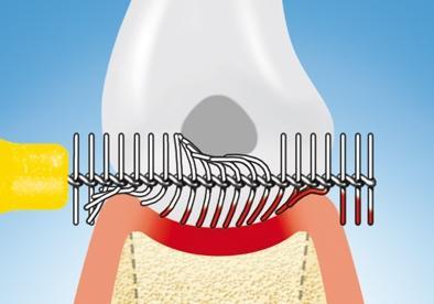 Funktionsweise Interdentalbürsten - (Zähne, Entzündung, Zahntaschen)