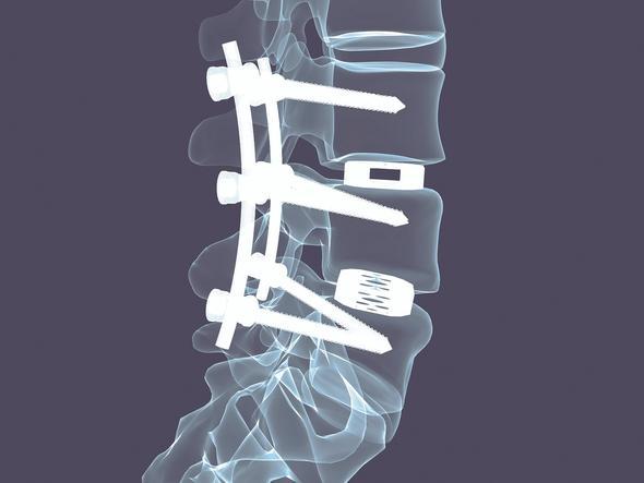 Wirbelgleiten, Schmerzen und Operation