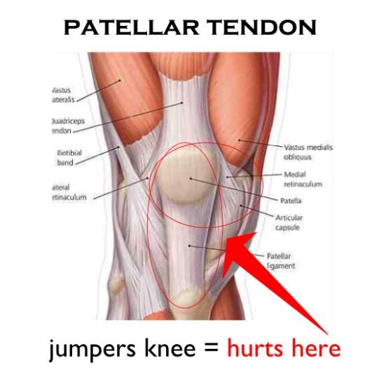 pijn hamstring knieholte