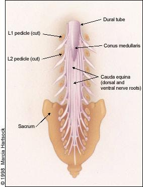cervical spine epidural steroid injection video