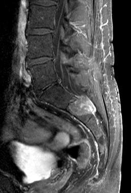 Wirbelsäule 2 - (Arthrose, Bandscheibe, Wirbel)