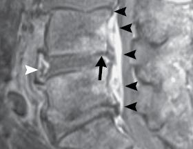 epidurale Abszess  kleine Pfeile   weisser und langer Pfeil Ödeme - (MRT, Metastasen)