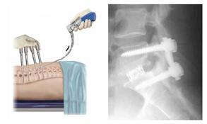 Schmerz 2 - (Rückenschmerzen, Orthopäde, Sprunggelenk)