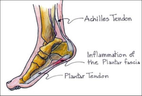 Fersenschmerzen 1 - (Orthopäde, Sportverletzung, Sprunggelenk)