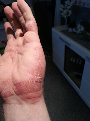 Hand 7 - (Allergie, Ekzem, Hausstauballergie)