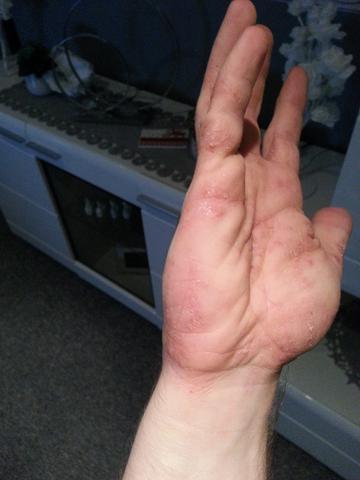 Hand 8 - (Allergie, Ekzem, Hausstauballergie)
