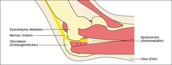 Ellenbogen 1 - (Schmerzen, Arm, Bruch)