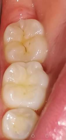 Graue verfärbung zahn Zahn verfärbt