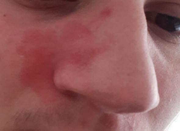 Nase der auf trockene immer haut Rosacea: Mehr